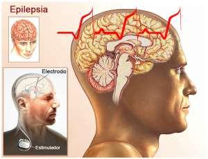 Estimulación del Nervio Vago