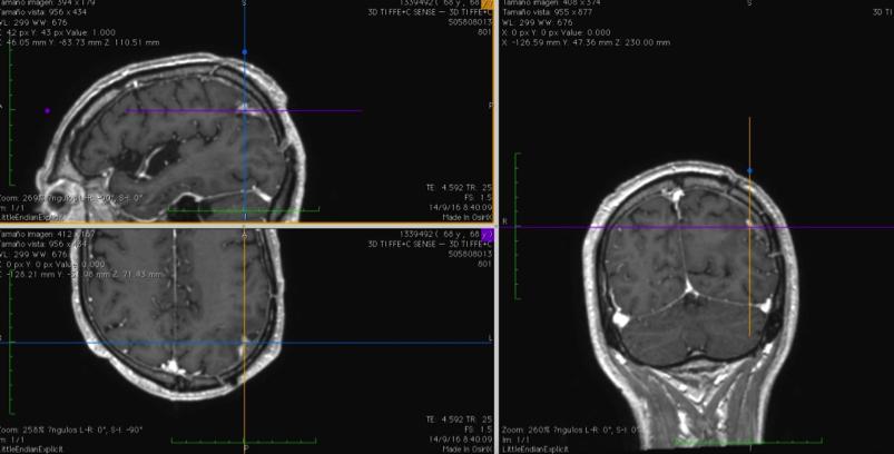 neuronavegador3