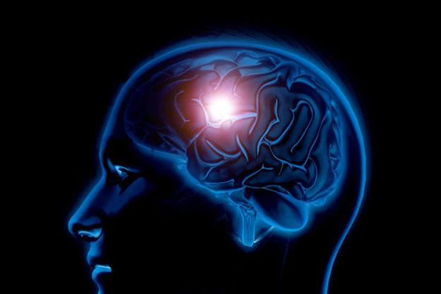 traumatismo cerebral post