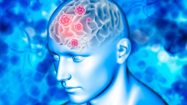 manifesrtaciones neurologicas