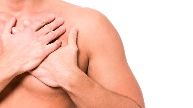 miocardio post