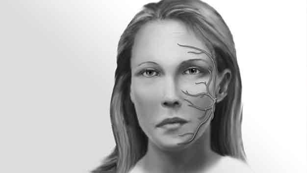 paralisis facial post
