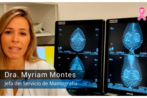 mamografias myriam montes